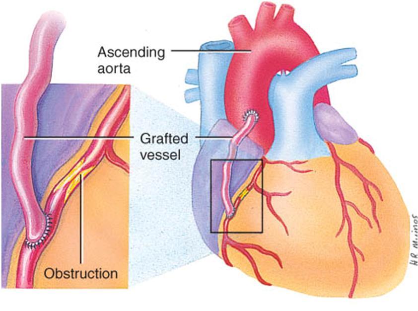 MEDICINA: Anatomía Del Corazón