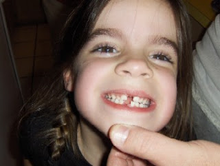 Maddie with a Missing Tooth