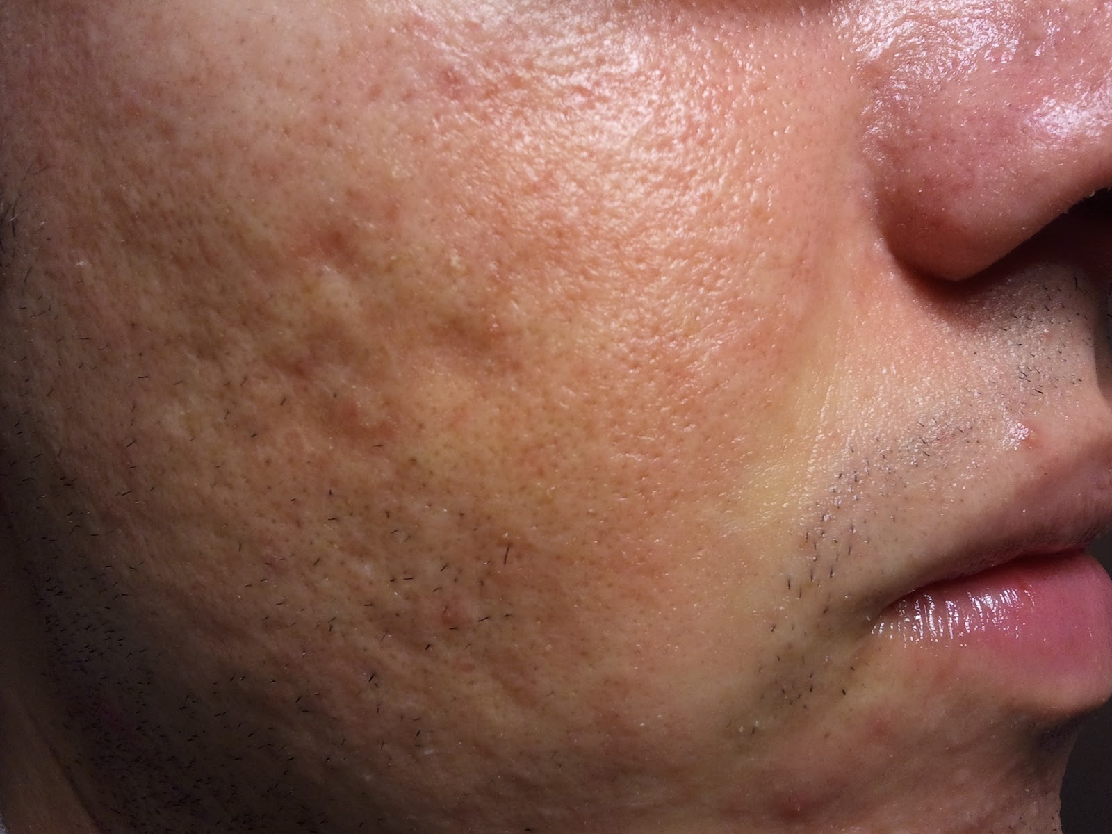 large pores on nose - photo #18