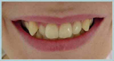 Reshape Teeth Without Pain