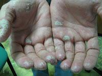 Фото псориаза на ладонях и кистях рук