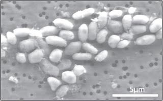 Imagen de GFAJ-1 creciendo en arsénico