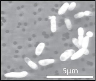 Imagen de GFAJ-1 creciendo en fósforo