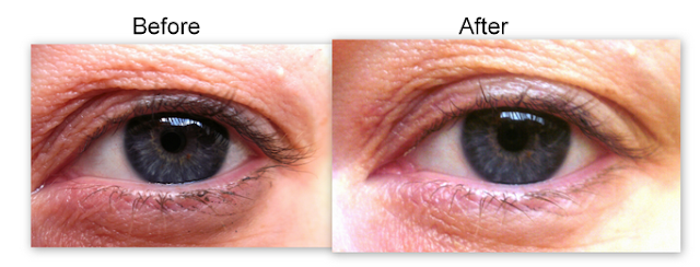 Before and After Estee Lauder Advanced Night Repair Eye Recovery Complex