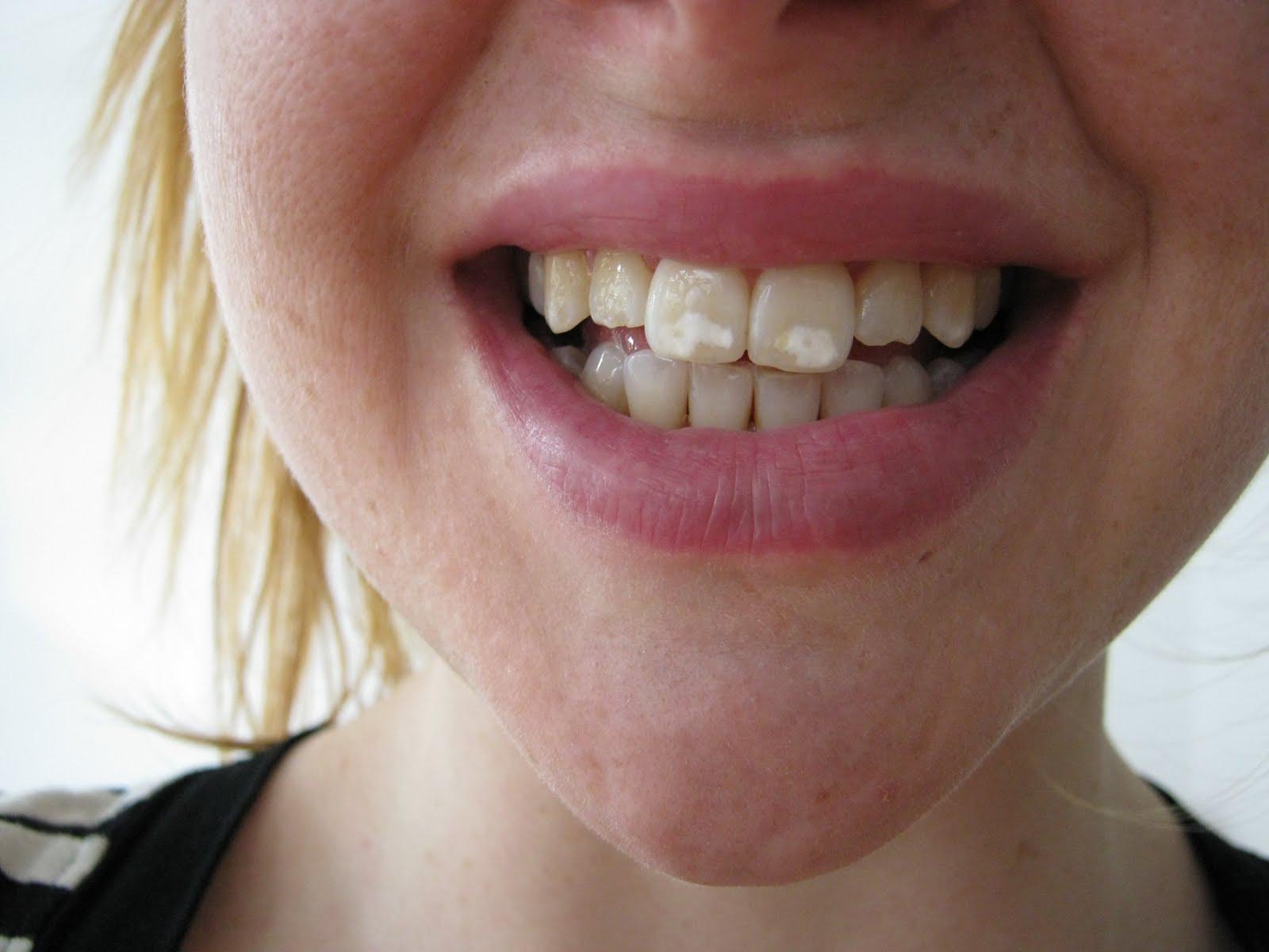 bästa tandblekningen hos tandläkare