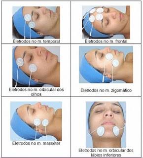 tratamento,Isometria Facial