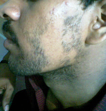 Alopecia Areata - on Beard