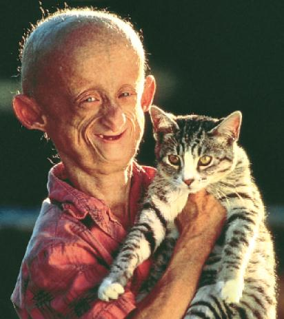 progeria Tricks To Help With Thinning Hair In The Future