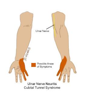 Left Ring Finger Pain Meaning