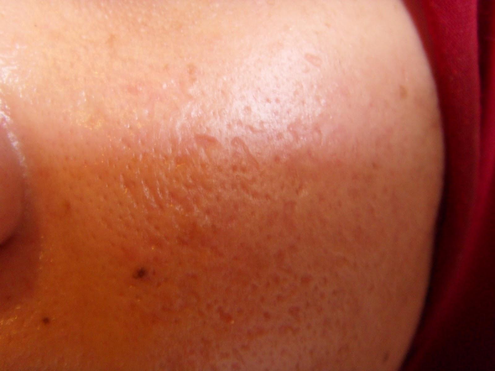 Adult Skin Problems - WebMD
