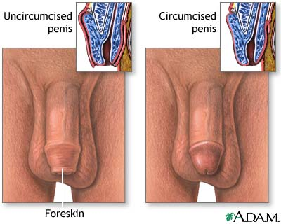 berkhatan, circumcised, sunat