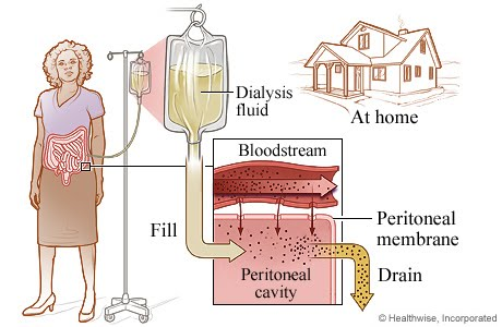 Continuous Ambulatory Peritoneal Dialysis  CAPD  is the type of