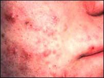 Acne (Pimple) :Treatment, Home Remedies, Cure Acne, Acne ...