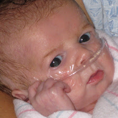 no more breathing tube