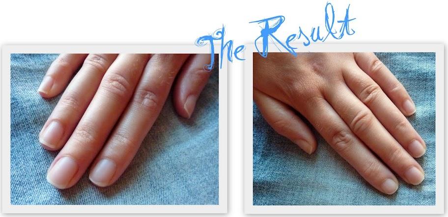 polera naglar