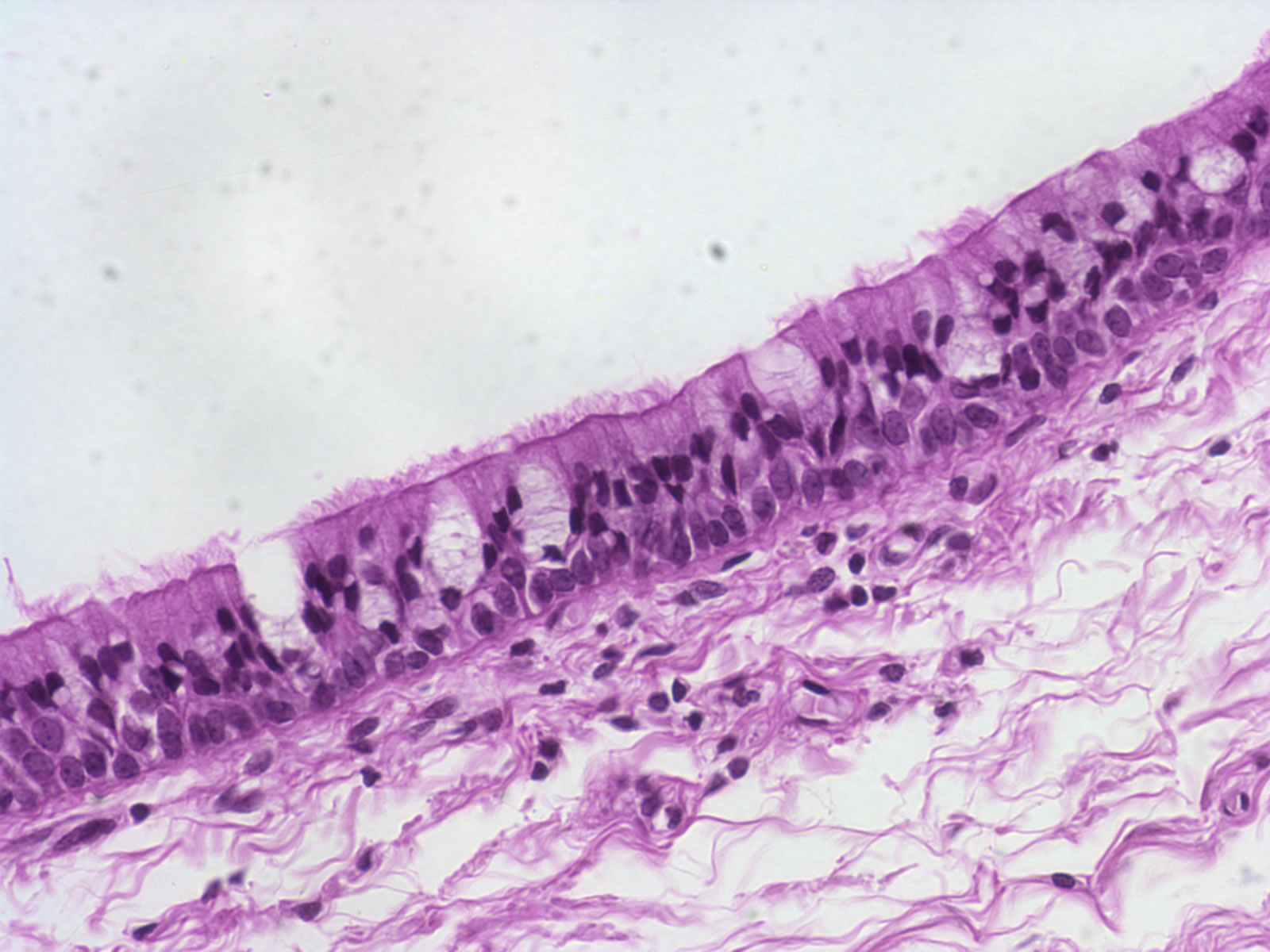 epithelium tissue Classification of (animal) tissue types - epithelial tissue, connective tissue, muscular tissue, nervous tissue identifying the tissues within each category with brief descriptions and examples.
