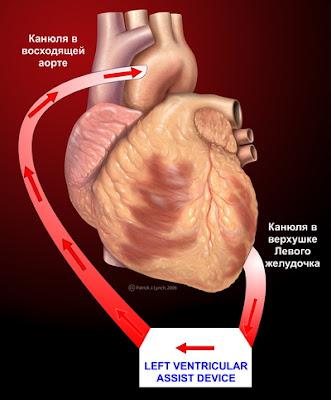 VAD Perfusion-UA - Принципы работы искусственных желудочков сердца