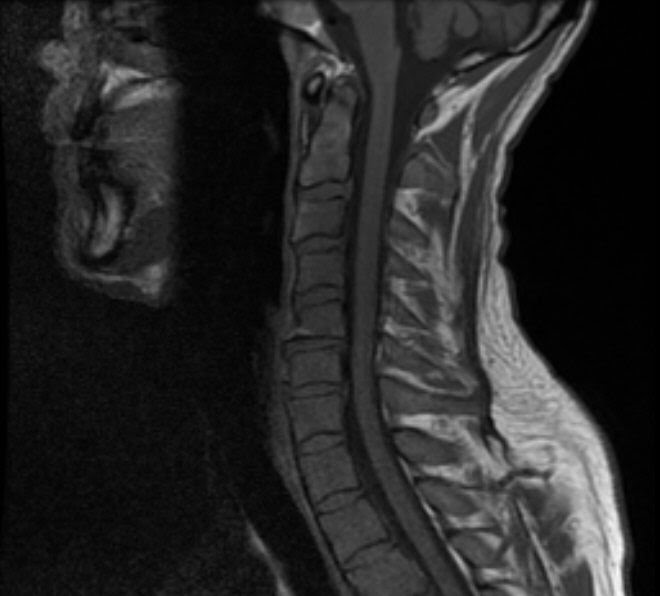 Neuroradiology On the Net: Subacute combined degeneration B12 Deficiency Spinal Cord