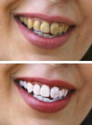 Los dientes se parten desde los dientes inferiores