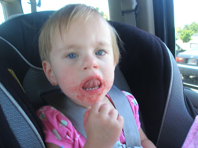 newborn heat rash on face. toddler heat rash pictures.