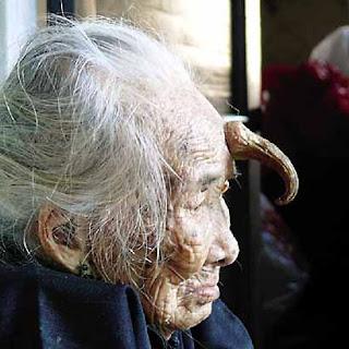 10 kasus manusia aneh di Asia Granny%2Bhorn