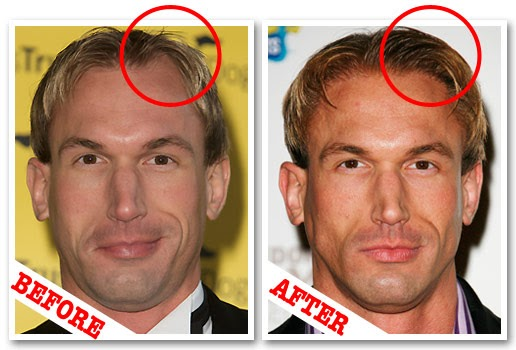 Doyounoah Hair Transplants For Tv Doctor