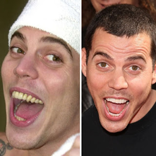 Inspire! Dental: Worst Celebrity Smiles Round 2