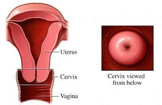 rosa utflod gravid hvor fort utvikler livmorhalskreftg