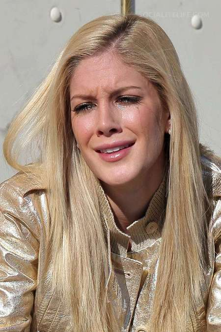 heidi montag plastic surgery face. Post plastic surgery, her face