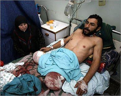http://2.bp.blogspot.com/_haUxZZoiOtI/S-6gPR3oonI/AAAAAAAABgo/8S0teltWZ-w/s400/Palestinian+double+amputee+in+Gaza+Hospital.jpg