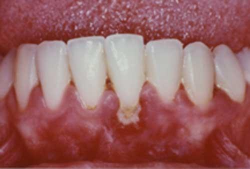 Gum Recession Gum Recession