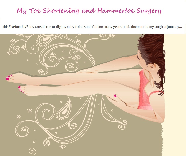 My Toe Shortening Surgery and Hammertoe (Hammer Toe) Surgery Blog