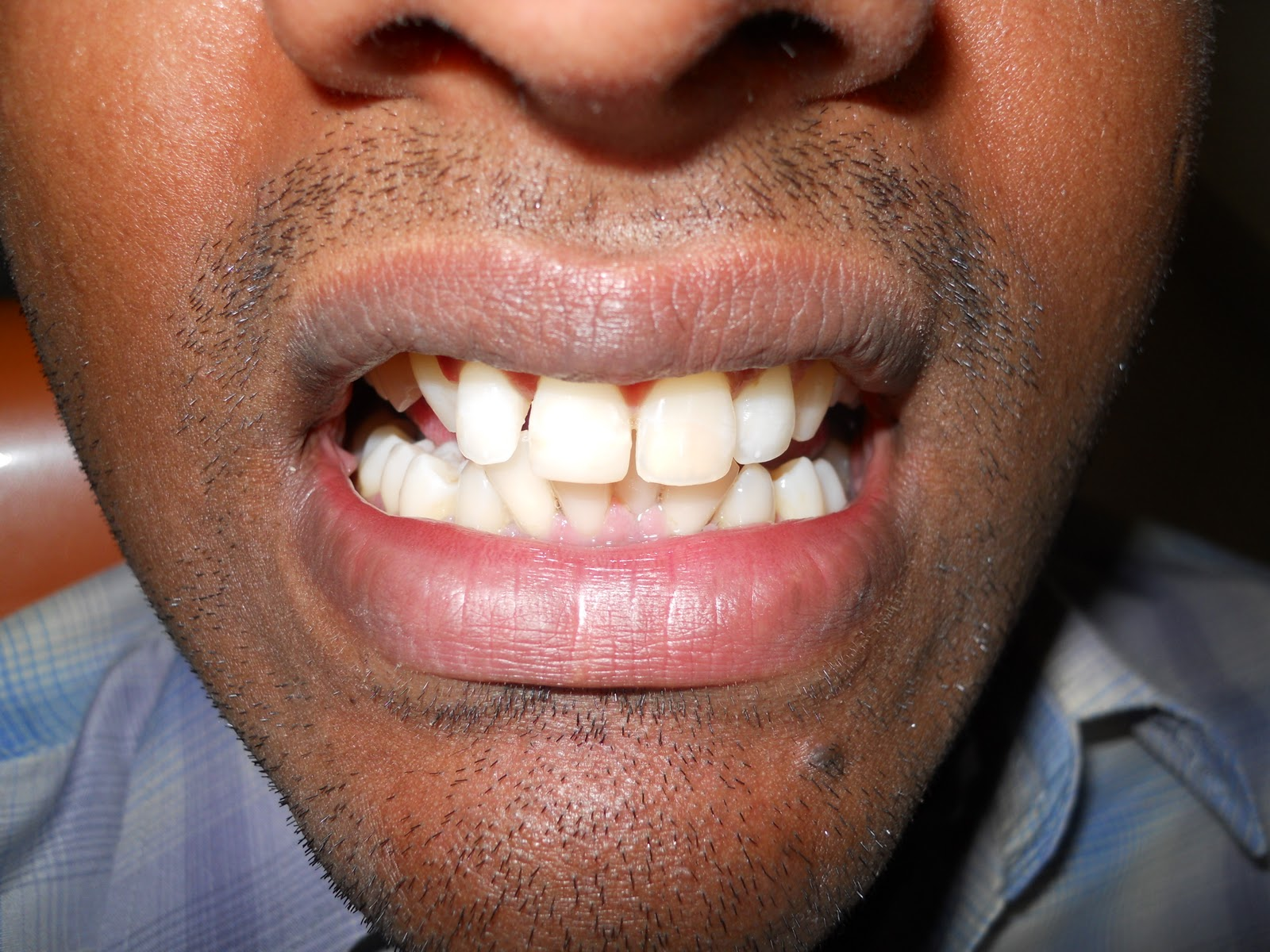 how to fix a broken crown tooth