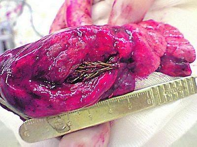 Torokossik paru-paru tumbuh cemara