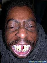 ¿Cuantos dientes tiene sin pensar?