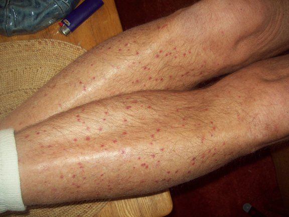 Red spots on legs and they're spreading - I cannot get a ...