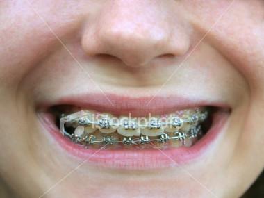Productos - Como alinear los dientes en casa sin brackets ...