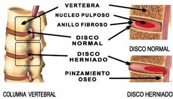 hernia de disco columna: