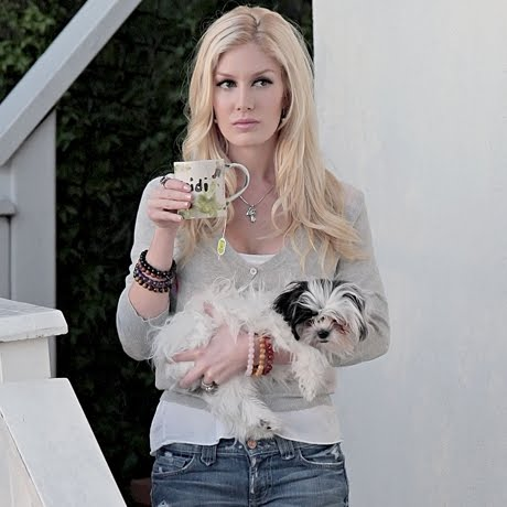 heidi montag before surgery. heidi montag after surgery.