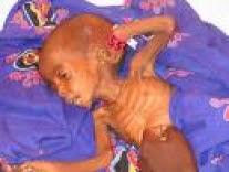 The Grim Reality of Darfur