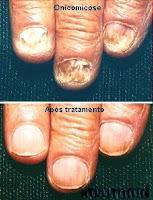 Do que curar um velho fungo de pregos que estão rapidamente