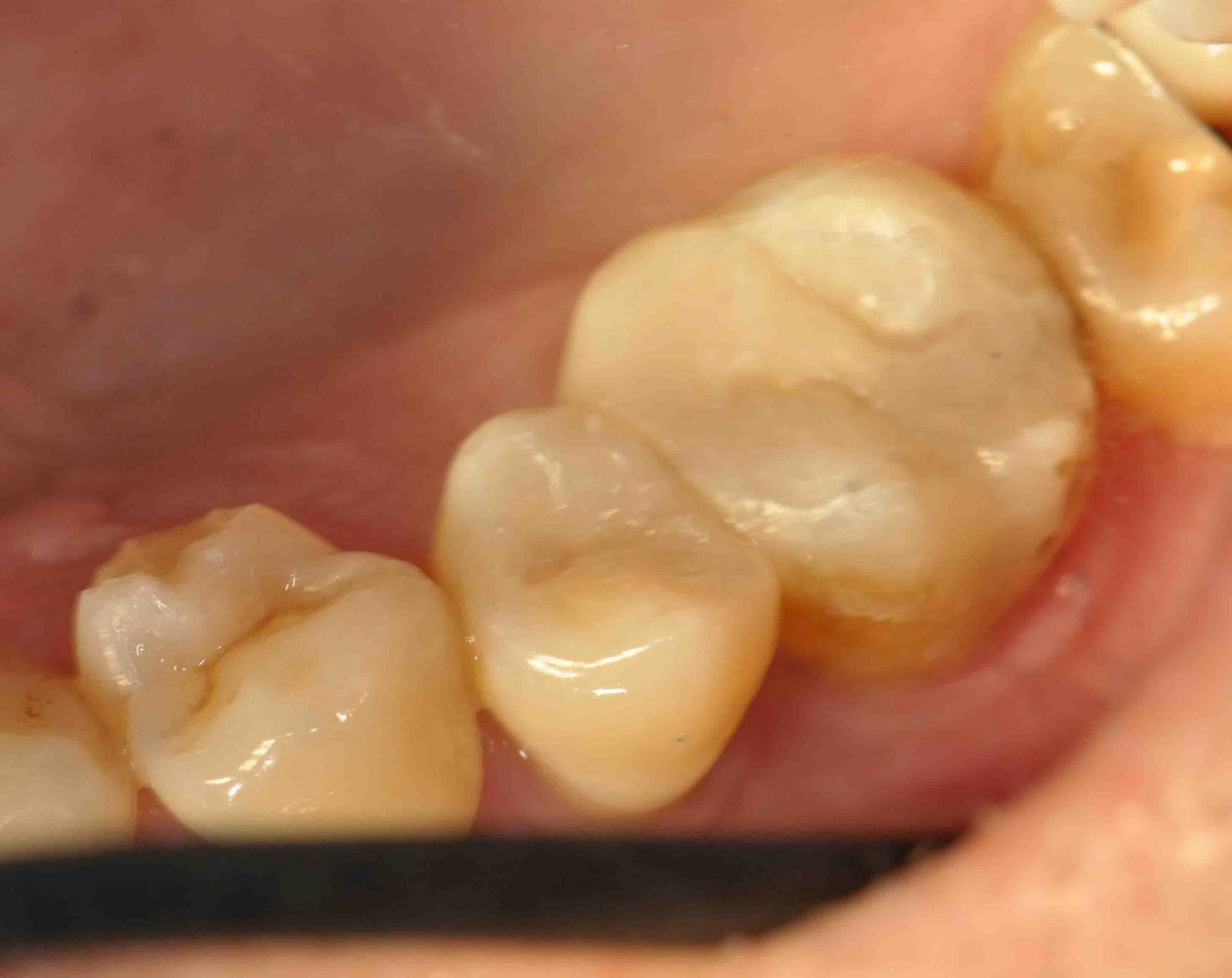 Treatment Options: Dental Aesthetic with White Filling II ...