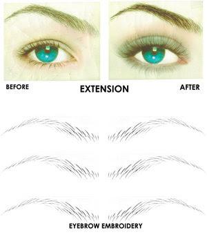 Laser--Removing Eyebrow Tattoo, Eyebrow Embroidery, Eyelid Tatoo