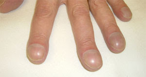 Nail clubbing may signal lung, heart & stomach diseases.