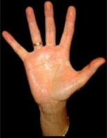transpiration des mains solution
