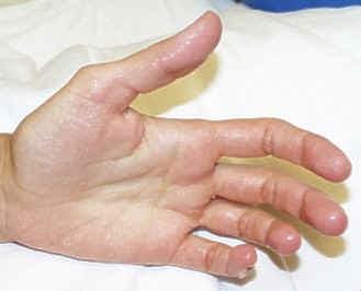 traitement transpiration des mains