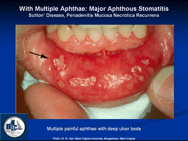 diagnosed with Stomatitis.