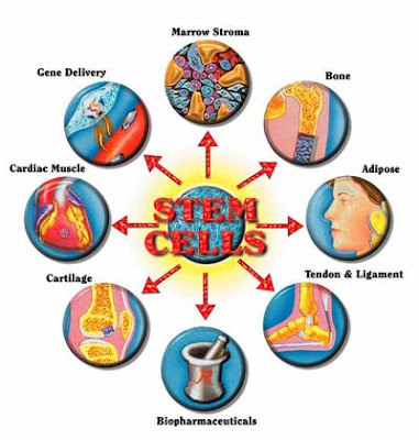 Stem Cell Therapy And Treatment Methods, New hope for people with HIV / AIDS, autotransplant, allotransplant, xenotranplant