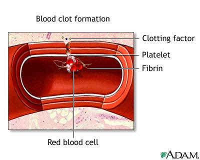 Hemophilia blood clotting