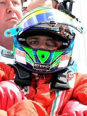 Felipe Massa e seu Capacete Destruído